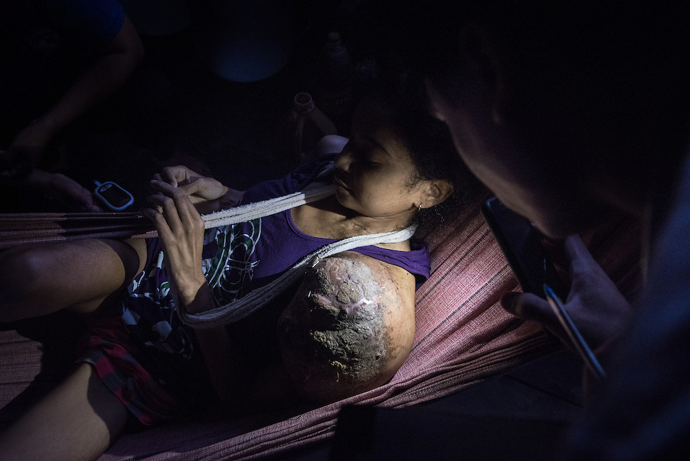 Aricele Silva Carvalho, 24, has suffered from a giant tumor for the past two years, is seen by Doctor Luiz Pessoa in the Divino Espiroto Santo Community on the Rio Madeirinha, a tributary of the Amazon river in Brazil Wednesday June 18, 2015. Doctors and dentists aboard the Igaraçu are on a 20 day visit to various tribal communities up and down parts of the Amazon river and its tributaries. The Igaraçu is a two-story floating clinic outfitted with medical staff, dental and exam rooms, and a pharmacy, and serves a small portion of the rivers vastness in 44 communities of the Wood rivers above Madeirinha, Autaz-Açu and Autaz Mirin rivers. The 80-foot transom bow takes about a month-long break in between trips to resupply and perform maintenance. Photo Ken Cedeno