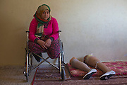 Palestinian Manar Shabari sits in her wheel chair by her   prosthetic legs that have been fitted with festive shoes to be worn at her brother's wedding at a relative's home  in Jabalya, Gaza December ,30,2014 . Manar Shabari,14, suffered severe injuries  on July 24 during an Israeli military assault on  the UN school in Beit Hanoun, in northern Gaza .Her mother and brother and three other family members were amongst the more than 15 killed at the school where  hundreds of displaced civilians were taking shelter during the war between Israel and Palestinian militants in the Hamas-controlled Gaza Strip . (Photo by Heidi Levine/Sipa Press).