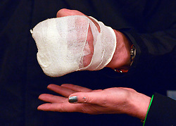 """© Licensed to London News Pictures. 04/03/2013. Heathrow, UK SIR RANULPH FIENNES' bandaged left hand held above Joanna Lumley - Expedition Trustee's hand. looks at his bandaged left hand. . Explorer Sir Ranulph Fiennes returns to the UK after pulling out of """"The Coldest Journey"""" Expedition to the Antarctic at winter due to frostbite. The Coldest Journey Press Conference today 4th March 2013 at Heathrow Airport. Photo credit : Stephen Simpson/LNP"""