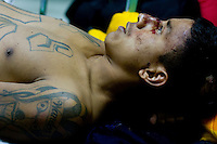 A MS 13 gang member receives stitches to the back of his head as members of  the street gang MS, are brought to the Guatemala city emergency room after a riot broke out at the San Jose Pinula jail where 15 people were hurt and taken to the hospital Monday Sept. 11, 2007 Guatemala City, Guatemala.  (photo by/ Darren Hauck)..