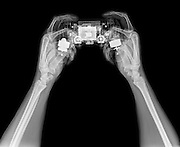 hands holding a Play station (PS4) under x-ray