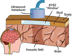 "August 3, 2017 - inconnu - Patients with neurological disease or brain tumours could have a window fitted into the skull to allow utrasound surgery.Ultrasound is already utilized to treat brain disorders such as Alzheimer's and Parkinson's diseases. It can also be used to kill cancer cells and to dissolve stroke-causing blood clots. Unfortunately, the thickness and density of the skull absorbs or reflects much of the ultrasound before it reaches the brain, making treatments less effective than they would be otherwise. Ultrasound sound waves are at a higher frequency than those audible to humans.However, the human skull is between 2 mm and 8 mm thick and relatively dense, meaning that most sound waves are reflected or absorbed before they make it into the brain.Now researchers have come up with a solution be creating a window on the brain. Developed by scientists at the University of California, Riverside along with colleagues from three Mexican research institutes, the window actually consists of an implant which is located beneath the scalp, replacing part of the cranium bone.It's made from a ceramic material known as Yttria Stabilized Zirconia (YSZ), which is biocompatible, extremely hard and shatter-resistant. Due to these qualities, it's already used in applications such as dental crowns and hip replacements.The material also has a very low porosity, which allows targeted ultrasound waves to easily pass through during repeated treatment sessions. .The window would overcome this proiblems.A previous version of the technology has already been developed to let therapeutic laser light pulses get through to the brain, which is currently in pre-clinical trials.Study co-leader Prof. Guillermo Aguilar said: ''Developing an optically and radio-frequency transparent cranial implant was already an exciting accomplishment.""We continue to work to make this implant a reality.""''Proving that ultrasound could be transmitted through the implant could expand its thera"
