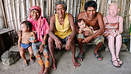 """Kuna Indians, showing an albino member. Panama's Kuna tribe has one of the world's highest occurrences of albinos, revered as an elite group that the Kuna call """"the children of the moon."""""""