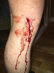 Pictured: The damage done to Jordan Fyfe's knee after he was shot by an air pellet when walking the dog in  Kirkintilock last Friday.<br /> <br /> Assistant Chief Constable Mark Williams today unveiled details of the three-week drive along with the designated stations where unwanted weapons can be handed in for secure disposal. <br /> <br /> Ger Harley | EEm 19 May  2016