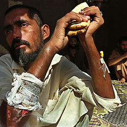 Face of Addiction - An Afghan heroin addict,in the Tribal areas of Pakistan's northwest, holds his only food for the day, a piece of bread. What money he is able to beg will be spent on his addiction.  ....