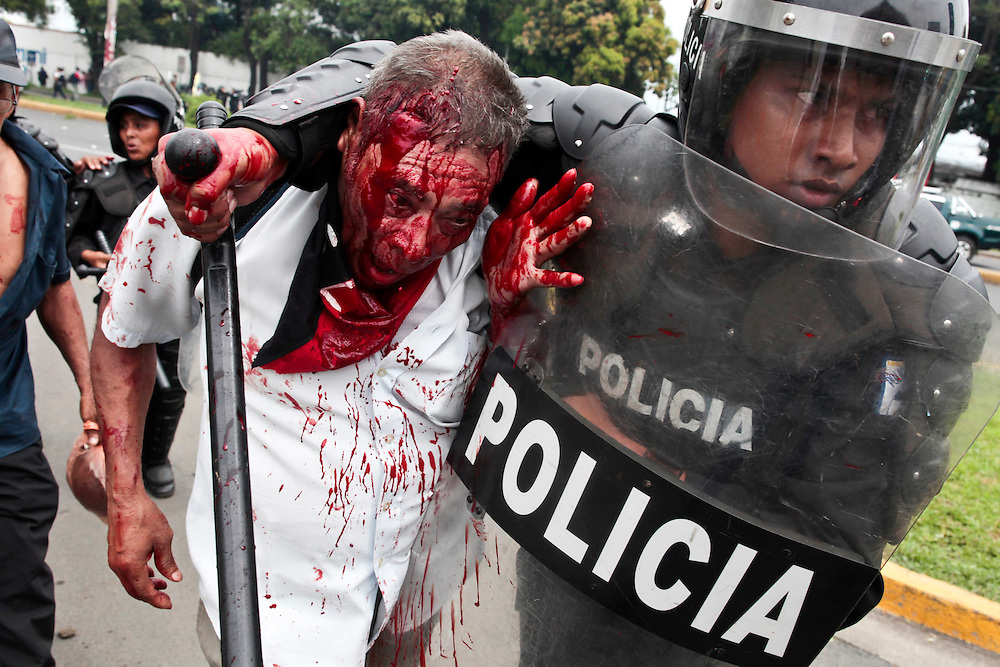 A injured former soldier of the Sandinista Popular Army , EPS, is deteined for riot police during a clashes after block the entrance to the international airport in the Panamerican high-way in Managua, Nicaragua, Thursday, May 31, 2012. Former soldiers demand the government of  NIicaragua's President Daniel Ortega to provide them social benefits as veterans of wars.