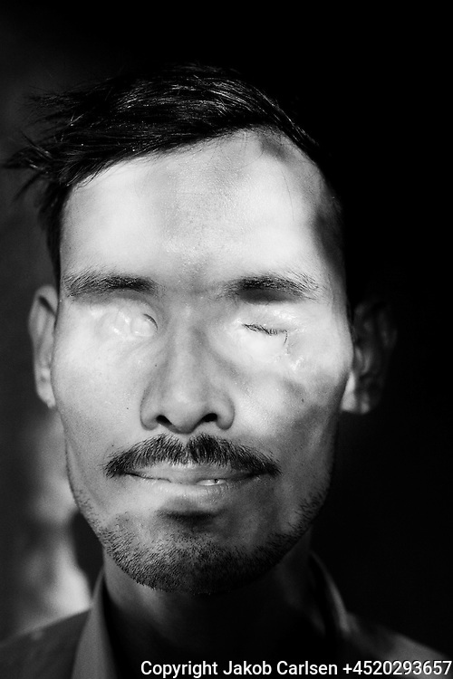 Violence against untouchables is common. Especially when untouchables are fighting for their rights. Awadesh Kumar was hit by gunshots in his face after trying to mediate in a conflict between untouchables and caste people.