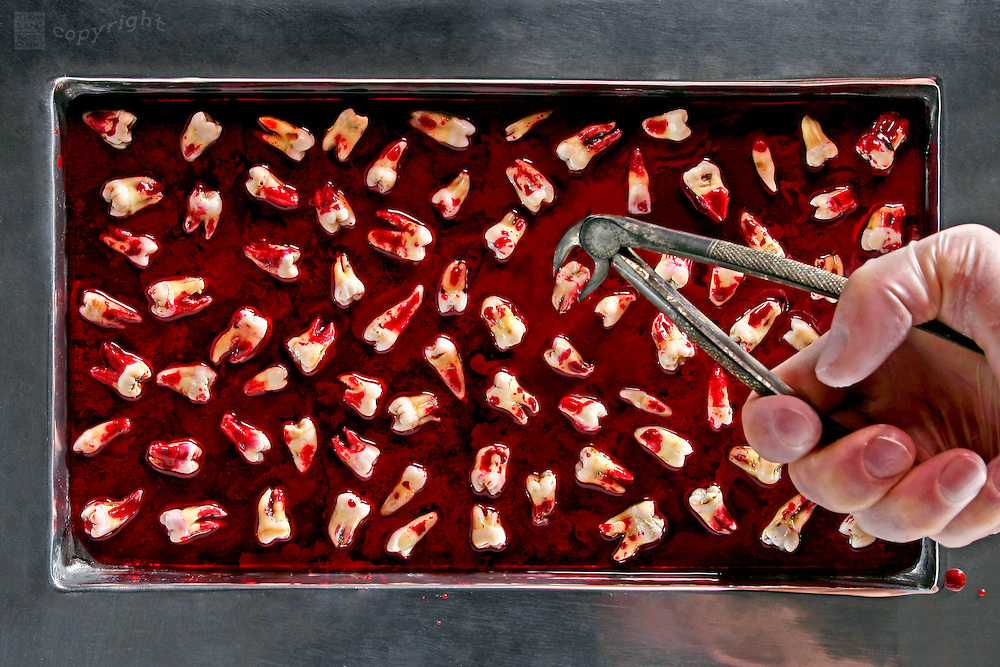 A hand with dental pliers sets a pulled molar into a steel tray full of bloody teeth.