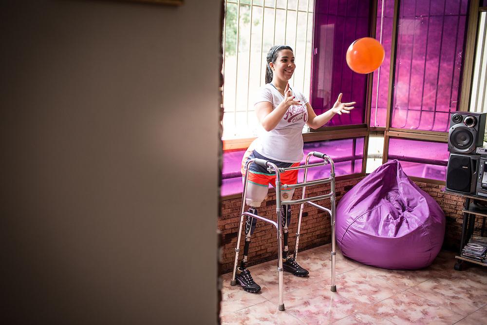 Zarevitz Camacho, una joven amputada bilateral entrena con una pelota durante su sesión de fisioterapia en Caracas. 08 de mayo de 2014. (Foto/Ivan Gonzalez)