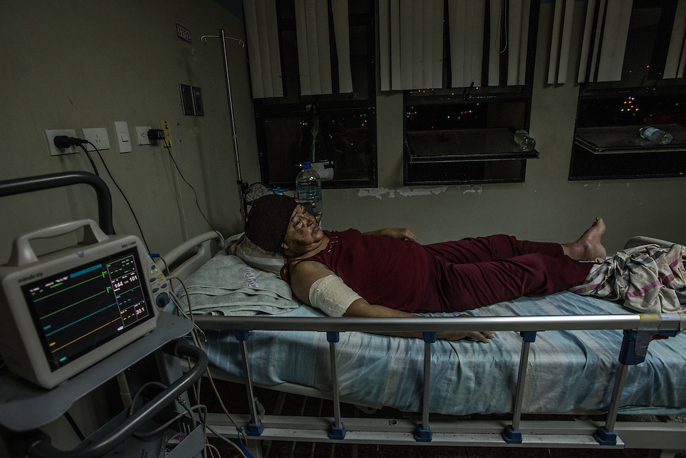 PUERTO LA CRUZ, VENEZUELA - APRIL 16, 2016: Clara Villega, 51, has lupus and a condition where she can't stop bleeding. She needs a catheter which can no longer be found in the country, and medicines related to her condition that she also cannot find.  Hospital Universitario Dr. Luís Razetti is one of the worst state-run, public hospitals in Venezuela.  Doctors compare it to working in a war zone - they regularly have to turn patients away, because they don't have the majority of medicines  or medical equipment and supplies needed to give them medical attention.  When they do accept patients, they have to work with extremely limited resources, because they don't have the supplies they need for things like X-Rays,  and many exams nd operations.  The hospital's infrastructure is crumbling, and staff don't have all the cleaning supplies required to keep the hospital sanitary. The hospital also suffers from weekly shortages of running water and electricity.  In April, several babies died when a power outage turned off the incubators, and the hospital's generator failed to work because of lack of maintenance.  The same month, authorities found over 100 pieces of medical equipment, stolen from the hospital in the home of the assistant to the hospital's director.  Despite having the largest oil reserves in the world, falling oil prices and wide-spread government corruption have pushed Venezuela into an economic crisis, with the highest inflation in the world and chronic shortages of food and medical supplies.  PHOTO: Meridith Kohut