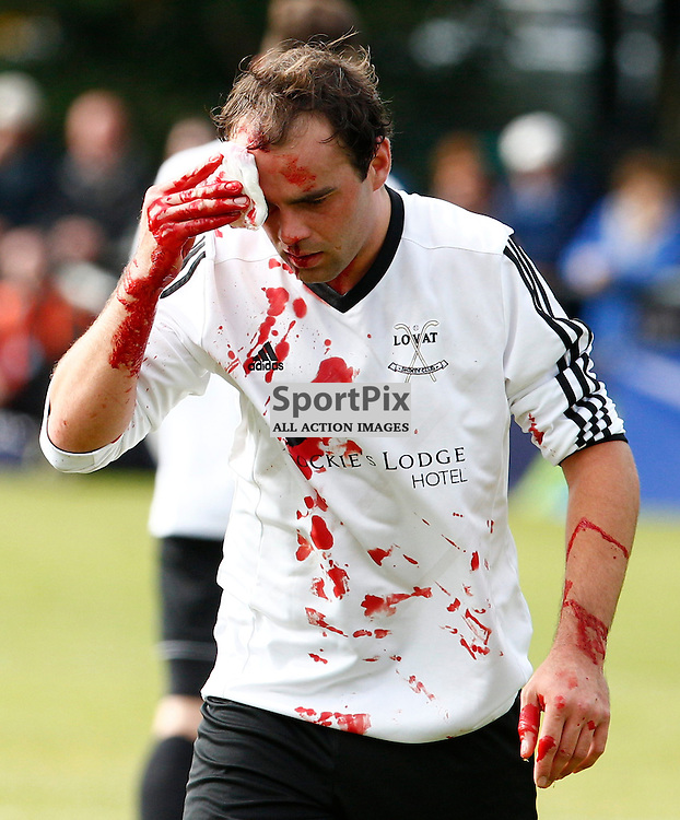 2015 SSE Scottish Hydro Camanachd Cup Final Saturday 19th September at Mossfield Stadium, Oban....Ryan Ferguson leaves the field of play after sustain a nasty injury to his head....(c) STEPHEN LAWSON | SportPix.org.uk