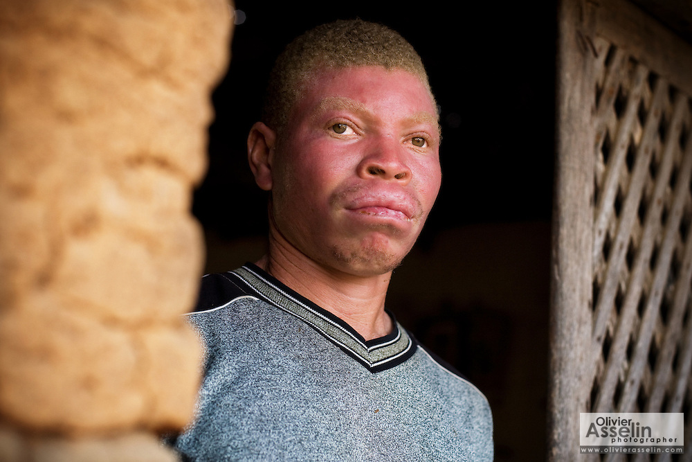 Steven Gamor, 32, in his family's home in the village of Tefle Kpotame, Ghana on Tuesday April 22, 2008.