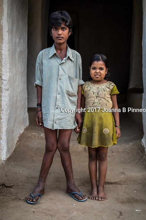 Gariya, Sonbhadra, Uttar Pradesh, India. <br /> Vishal, age 12, with sister Santoshi, age 7. The health problems in the village started 20 years ago. Before that everyone was fine. Vishal&rsquo;s legs started to turn out when he was 2 or 3 years old. It has just been getting worse for the last 10 years.  Santoshi has brown teeth which is one symptom of too much fluoride in the water. Fluorosis is a defect of tooth enamel caused by too much fluoride intake during the first 6 - 8 years of life. The damage to the enamel is permanent and the teeth become more porous. Drinking water tested in Gariya showed extremely elevated levels of fluoride as high as 7.79 ppm. The WHO specifies the maximum level of fluoride to be 1.5 ppm with 1.0 ppm the optimum.  Elevated levels can result in skeletal fluorosis that affects the bones and major joints in the body.  Symptoms of fluoride toxicity include stiff, painful joints, bony, painful lumps where tendons and ligaments attach to the bones, chronic fatigue syndrome, white or brown spots on teeth, fatigue and brain fog, gastrointestinal problems, kidney problems and severe muscle weakness among other symptoms.