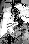Victim of drunken brawl Saturday night Cardiff Royal Infirmary 1989