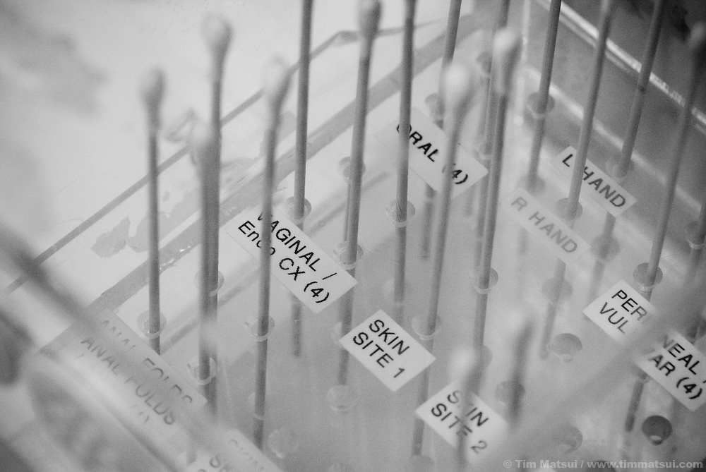 Sample swabs in a rapid-drier after a sexual assault exam of a 13 year old girl who was beaten, possibly raped and who arrived late on a Sunday night at Harborview Medical Center in downtown Seattle.
