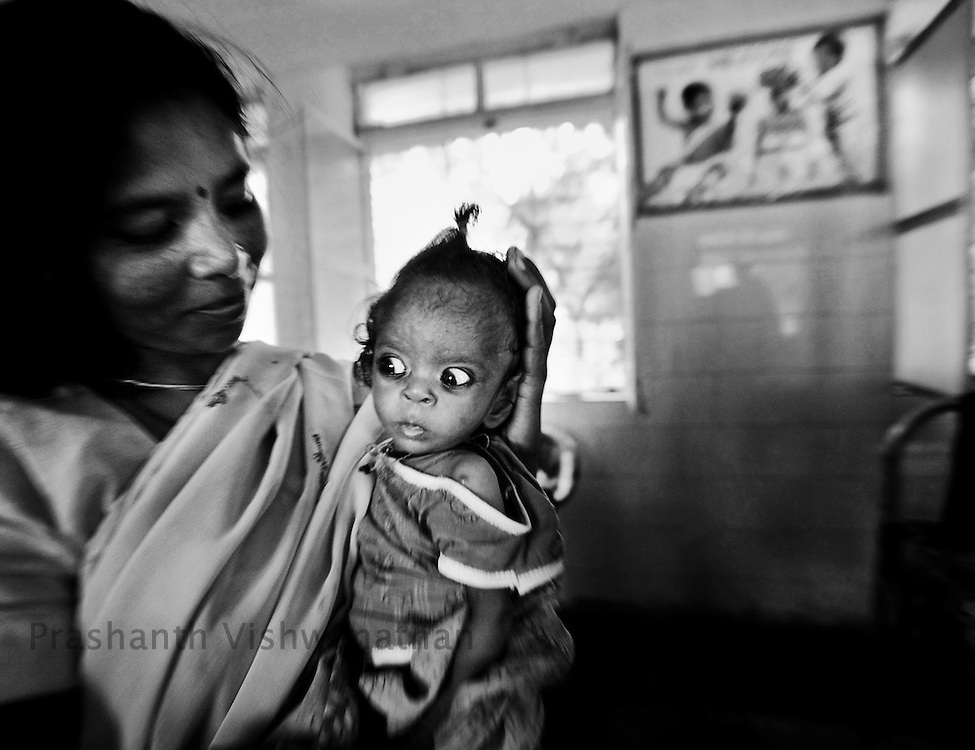 Six months old malnutritioned Neha is cared for by her mother in the Nutrition Rehabilitation Centre (NRC) in Chattarpur Madhya Pradesh, India, on Wednesday September 9, 2009. Photographer: Prashanth Vishwanathan/Action Aid