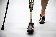 Nederland, Nijmegen, 4-8-2008Patient, patiënt, heeft auto ongeluk gehad, waarna het been is geamputeerd. Via fysiotherapie moet hij opnieuw leren lopen.Foto: Flip Franssen