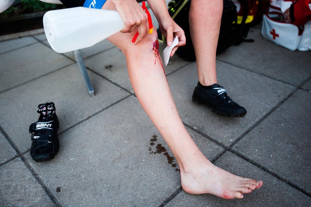 Een koerier verzorgt haar verwonding na afloop. In Nieuwegein wordt het NK Fietskoerieren gehouden. Fietskoeriers uit Nederland strijden om de titel door op een parcours het snelst zoveel mogelijk stempels te halen en lading weg te brengen. Daarbij moeten ze een slimme route kiezen.<br /> <br /> A messenger is cleaning her wounds after the finish. In Nieuwegein bike messengers battle for the Open Dutch Bicycle Messenger Championship.
