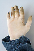 hand with used latex glove