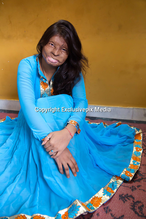 """The incredible survival stories of six brave woman horrifically disfigured in acid attacks who refuse to be victims<br /> <br /> Brave teenagers left disfigured by sick acid attackers have revealed how they felt their flesh burn and melt away during the onslaught.<br /> Laxmi was just 16 when a 32-year-old man drenched her face in acid because she rejected his romantic advances.<br /> <br /> Now 24, she has told how she was pinned down by her twisted attacker but bystanders ignored her horrified screams and fled instead of helping her.<br /> She said: """"I was waiting for a bus in a crowded Central Delhi area in daytime. He approached me with his brother's girlfriend.<br /> <br /> """"Before I knew it, they had flung me onto the road, pinned me down and threw acid on my face.<br /> """"I kept screaming for help but no one stepped forth. Everyone ran in the opposite direction. I could feel my flesh burning and I covered my eyes with my arms.<br /> <br /> """"That reflex action saved me from losing my vision. Acid corrodes quickly.""""<br /> <br /> Within seconds she had """"lost her face"""" and was left needing at least 11 surgeries.<br /> <br /> She added: """"I had lost my face, my ear had melted and both my arms were charred black. A politician's driver took me to a hospital, where I was to stay for the next 10 weeks.<br /> <br /> """"I saw myself in the mirror at the end of 10 weeks and couldn't believe what the acid had done to me. The doctors had to remove the entire skin from my face and keep it bandaged.<br /> """"I've already had seven surgeries and need at least four more before I can go in for plastic surgery, provided I can afford it. I learnt to live with the physical pain but what hurt more was the way the society reacted.<br /> <br /> """"My own relatives stopped seeing me, as did my friends. I stayed indoors almost all the time for eight years.<br /> <br /> """"My main attacker was out on bail within a month and he soon got married. He returned to a normal life within a month. I tried"""