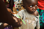 A boy has the circumference of his arm measured to monitor nutritional problems in the village of Banankoro, Mali on Saturday August 28, 2010.