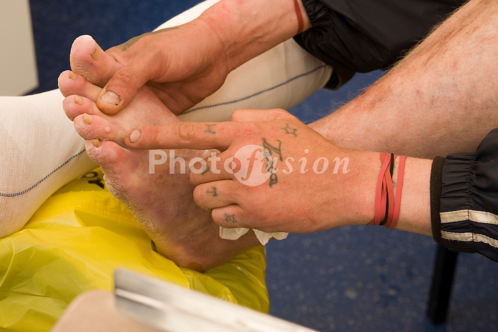 Nurse cleaning and redressing leg ulcer on a male patient severely exacerbated by homelessness at a walk in clinic for the homeless; Brighton; UK, Living on the street; the patient is unable to keep his feet dry or change into clean clothes regularly