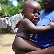 A volunteer holds a child covered in blisters while trying to find his mother during  home visit in Grand Bassin, Haiti.  The mother was visiting with neighbors and had left the child with a neighbor's child, who was roughly 4 or 5 years old.