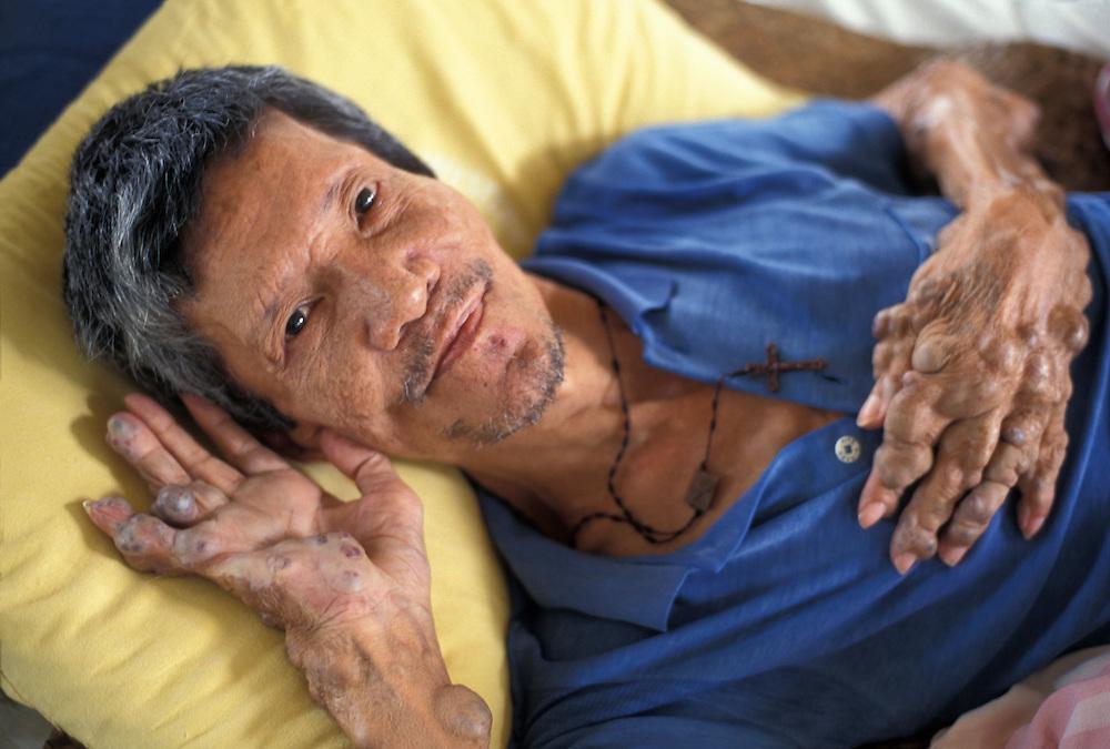 Philippines, Panay Island, Raymundo Mestidio suffers from leprosy at Western Visayas Sanitarium in Santa Barbara.
