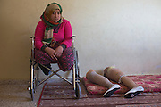 Palestinian Manar Shabari sits in her wheel chair by her   prosthetic legs that have been fitted with festive shoes to be worn at her brother's wedding at a relative's home  in Jabalya, Gaza December ,30,2014 . Manar Shabari,14, suffered severe injuries  on July 24 ,2014 ,during an Israeli military assault on  the UN school in Beit Hanoun, in northern Gaza .Her mother and brother and three other family members were amongst the more than 15 killed at the school where  hundreds of displaced civilians were taking shelter during the war between Israel and Palestinian militants in the Hamas-controlled Gaza Strip . <br />