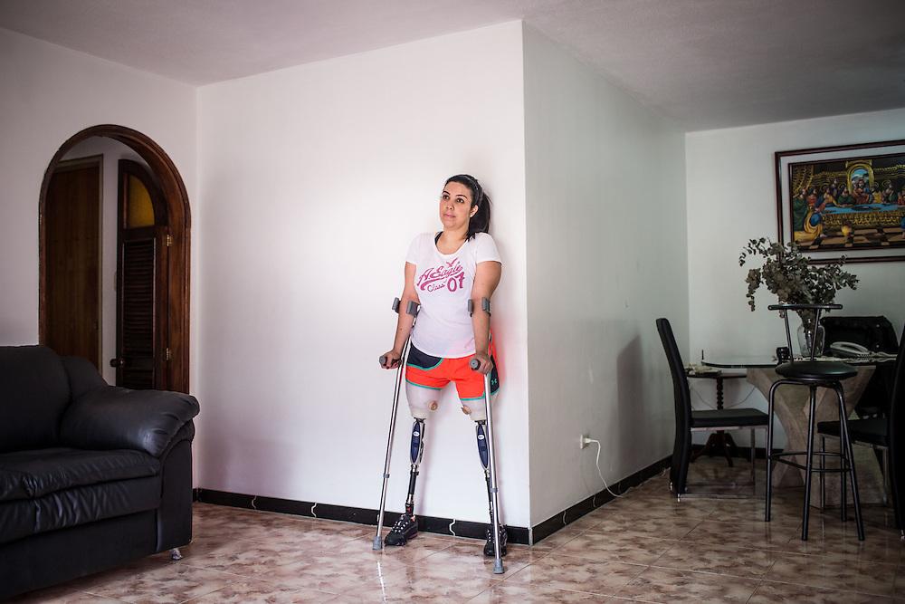 Zarevitz Camacho, una joven venezolana amputada bilateral permanece de pie en su apartamento ubicado en Caracas. 08 de mayo de 2014. (Foto/Ivan Gonzalez)