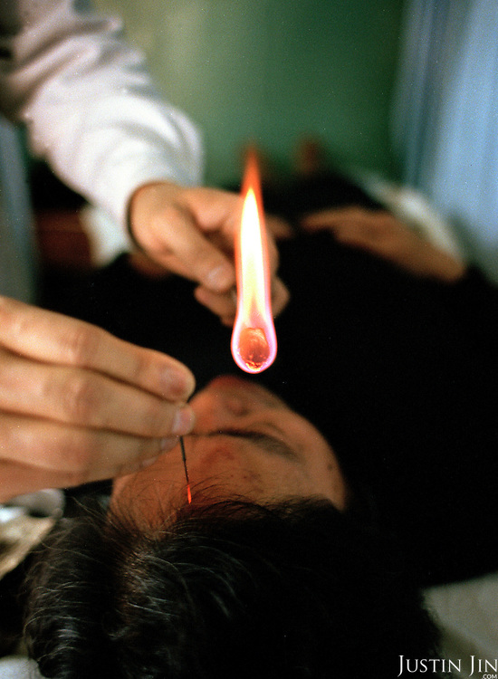 The woman is repeatedly stabbed with the burning needle to cure numbness in the head...Photo taken March 2000