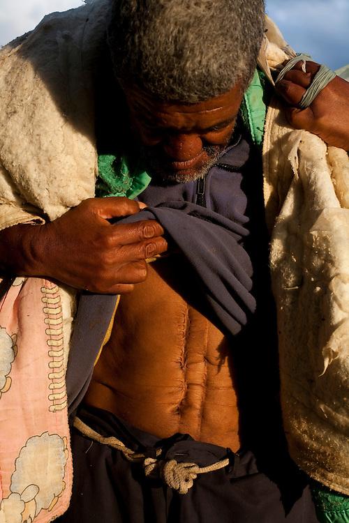 Extrema_MG, Brasil...Andarilho que tem uma cicatriz que segundo ele foi fruto de um ataque de uma cobra Urutu enquanto ele dormia...Wanderer who has a scar from an attack of a snake Bothrops while he slept...Foto: LEO DRUMOND / NITRO