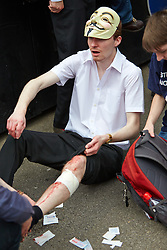 © Licensed to London News Pictures.  01/06/2013. LONDON, UK. An anti-fascist protest displays his injuries following clashes between rival protests by the BNP and anti-fascist groups in Whitehall. The BNP initially wanted to march in Woolwich, scene of the murder of a solider recently, but were banned by police from doing so.  Photo credit: Cliff Hide/LNP