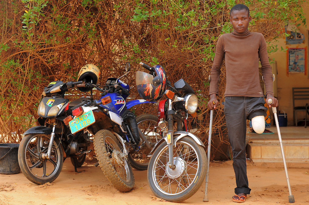 NIAMEY, NIGER  13-04-19  - Ismael Hassan, 19, lost his leg in a motorcycle accident 15 months ago. Ismael was at the ODI (Organisation pour le Developpement Inclusif au Niger) and New Hope House in Niamey, Niger on April 19, 2013 to be fitted for a new artificial leg. Photo by Daniel Hayduk