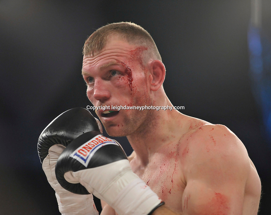 Nathan King with cut to the side of his left eye during his middleweight boxing contest where he was defeated by Nick Blackwell at Glow, Bluewater, Kent on the 8th November 2014. Promoter: Hennessy Sports. © Leigh Dawney Photography 2014.