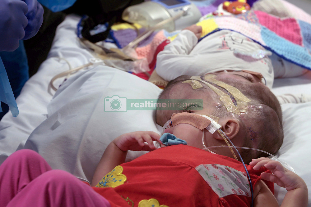 Undated handout photo issued by Great Ormond Street Hospital of two-year-olds Safa and Marwa Ullah, from Charsadda in Pakistan, before a surgery to separate their heads at the hospital in London. ... Craniopagus twins separated ... 15-07-2019 ... UK ... Photo credit should read: Great Ormond Street Hospital/Press Association Images. Unique Reference No. 44131224 ... Issue date: Monday July 15, 2019. The sisters, who were craniopagus twins, underwent three major operations to separate their heads at Great Ormond Street. The last operation, which saw the girls finally separated, took place on February 11 this year. See PA story HEALTH Twins. Photo credit should read: Great Ormond Street Hospital/PA Wire NOTE TO EDITORS: This handout photo may only be used in for editorial reporting purposes for the contemporaneous illustration of events, things or the people in the image or facts mentioned in the caption. Reuse of the picture may require further permission from the copyright holder.
