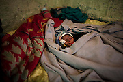 A 15 days child, for 1 kilo and few gram, daughter of a young prostitute. As a result of abuse suffered by a client the mother got pregnant with twins, one died a few hours after birth.<br /> <br /> Addis Ababa, Ethiopia, 07-03-2013.<br /> <br /> To protect the identities of the recorded subjects names are omitted