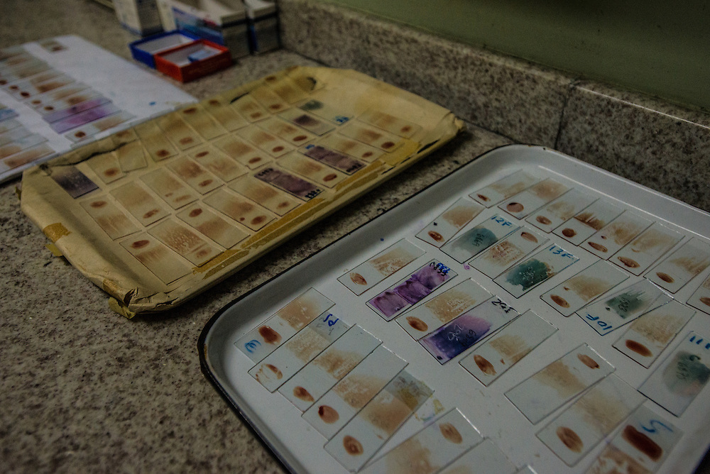 "SAN FELIX, VENEZUELA - MAY 24, 2016: Hundreds of microscope slides with blood samples of patients with symptoms of malaria: fevers, icy chills and uncontrollable tremors, waiting to be processed at a small clinic in San Felix.  A handful of doctors and hospital staff tried their best to test each patient for malaria: pricking their ears for a blood sample in a room without air conditioning and no lights because the government had cut power to save electricity. There were no medicines to be distributed, because the health ministry had not delivered any this day. Frustrated patients protested in the street outside of the hospital pleading for malaria medicine to be delivered.  Dr. Griselda Bello waved her hands helplessly to tell yet another patient that there was no medicine that day. ""Come back tomorrow at 10 a.m.,"" she said. ""My God,"" the patient said. ""Someone might die by then."" ""Indeed they might,"" she said. The spread of malaria in Venezuela is a state secret. Since 2007, the government has not submitted annual epidemiological reports on the disease and says there is no epidemic. But the most recent report, obtained by The New York Times from Venezuelan doctors involved in compiling it, confirms a surge is underway.  Last year, malaria cases rose 56% to 136,000 cases, the highest level in 75 years when the state began efforts to eradicate the disease, according to the report. Malaria has cut a wide swath through the country with cases now present in half of its 23 states. And among the strains present here is Plasmodim falciparum, the most fatal and severe form of the disease.   PHOTO: Meridith Kohut for The New York Times"