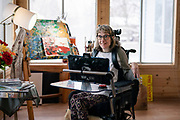 Gillette patient Kari Wagner sits for a portrait in Golden Valley, Minnesota, Wednesday, Jan. 15, 2020.