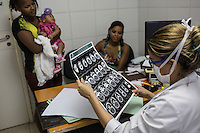 RECIFE, BRAZIL - JANUARY 8: Pediatrics doctor Danielle Cruz at The Professor Fernando Figueira Institute of Medicine, a public hospital, reviews a photographic scan for calcium deposits of the brain of three-month-old Isabella Vitoria da Silva Honoro who was born with microcephaly. <br /> <br /> The mosquito-borne Zika virus continues to spread in Brazil, alarming health officials and expecting mothers that their babies will be born with abnormal brain development called microcephaly. While researchers have yet to make a connection, Brazil has the highest number of babies born with mircocephaly - the most cases in Recife, Pernambuco - from mothers who tested positive to the Zika virus.  There are about 3,530 suspected cases of zika-related microcephaly in Brazil.