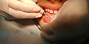 Young girl has her teeth cleaned by a dental hygienist at the dentist. Model release available