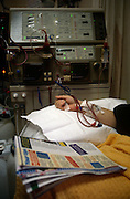 An elderly patient undergoes Hemodialysis in the Renal unit at St Bartholomews (Barts) Hospital in Smithfield, London
