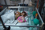 SURABAYA, INDONESIA - MARCH 25: <br /> <br /> Conjoined Twin babies in Surabaya, Indonesia<br /> <br /> The babies with one heart: Rare conjoined twins born in Indonesia with a completely attached chest and abdomen<br /> <br /> The conjoined twin girls born in Indonesia today were have a very rare condition which means they share a chest, abdomen and incredibly - a heart.<br /> Images have emerged showing the babies in a hospital bed in the Neonatal Intensive Care Unit of Soetomo Hospital in Java.<br /> They fall under the most common type of conjoined twins known as 'thoracopagus' which means they are joined at the upper torso and have just one heart between them, making it 'nearly impossible' to separate them and save both babies.<br /> Specialists from the hospital where they were born helped carry out the separation of conjoined twins at another medical facility in South Sumatra in 2013.<br /> <br /> <br /> The twins born today cannot be torn apart because they share vital organs but Soetomo Hospital has reportedly performed separation surgeries on 53 conjoined twins in the past.<br /> According to a Jakarta Post report, only two of those surgeries failed because of 'anatomy and heart abnormalities in the babies'.   <br /> <br /> Conjoined twins occur about once in every 200,000 live births and their survival is 'anything but assured' according to the University of Maryland Medical Centre.<br /> It claims 40 to 60 per cent of conjoined twins arrive stillborn and tragically, about 35 per cent only survive for a single day.<br /> <br /> <br /> The are genetically rare and always the same sex because they develop from the same fertilised egg and share the same placenta. <br /> 'Twinning' occurs either when a woman releases two eggs instead of one or she produces an egg that divides after it has been fertilised.<br /> Although there are many different types, the most common form of conjoined twins is thoracopagus which means they are combined at the upper torso like the baby girls in Indonesia. <br /> These twins share a heart which - depending on how closely they are joined - makes it 'nearly i