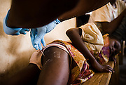 Amina Abukari, 7, lies on a wooden bench as as a health worker extracts a guinea worm from her buttocks at the guinea worm case containment center in Savelugu, northern Ghana, on Friday March 9, 2007. A parasite transmitted through water, guinea worm emerges from the host's body nine months after drinking contaminated water. Measuring up to 1 meter, it can only be pulled out a few cm every day to prevent it from breaking inside the host's body. Despite a widespread eradication program Ghana has the second largest number of cases in the world - after Sudan..