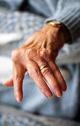 Elderly woman with arthritic hands