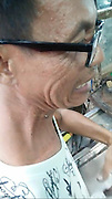 Blackhead squeezed from man's neck after TWENTY years<br /> <br /> This is the revolting moment a man has a giant blackhead squeezed from his NECK - after leaving it their for TWENTY YEARS.<br /> <br /> The middle-aged man in glasses had the stubborn spot just below his jaw for two decades without touching it.<br /> <br /> But friend Elle Panyafong persuaded him to let her remove it at her jewelry workshop in Pattaya, Thailand.<br /> <br /> She squeezes the area with her bare hands to push out the blackhead - leaving onlookers screeching in disgust.<br /> <br /> The man, who did not want to be named, is heard saying the clip: ''This is not lead like a pencil, it's a real pimple.<br /> <br /> ''It's a big one. I haven't taken out for 20 years.''<br /> <br /> The man then celebrates after it is removed.<br /> <br /> Elle, who runs a jewelry store and estate agents, said: ''It was disgusting. He'd had the blackhead on his neck for a long, long time. <br /> <br /> ''But it came out surprisingly quickly. Just one forceful squeeze and it was removed.<br /> <br /> ''Everybody was pretty repulsed by the whole thing. But he's happy that it's finally out. He says it feels much cleaner now.''<br /> <br /> Elle's clip went viral after she shared it online racking up more than a million views.<br /> ©Elle's Jewelry/Exclusivepix Media