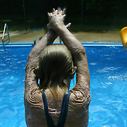 "A young girl, who was burned over 70 per cent of her body in a plane crash that killed her mother and sister, gets ready to dive into the pool at the Miracle Burn Camp in Okoboji, Iowa.  The camp is held annually  for children who have suffered both physically and psychologically from their burn accidents..  ""This camp is all about faith,"" says camp director Teresa Goehring, who has been at the camp since 1993.  ""Kids come out of it with such an amazing outlook.""  This camp was in the summer of 2006."