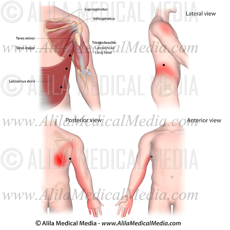 Trigger Points And Referred Pain Patterns For The Latissimus Dorsi Magnificent Referred Pain Patterns