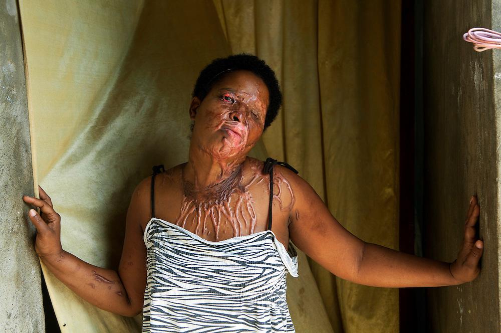 SANTO DOMINGO (REP&Uacute;BLICA DOMINICANA), 14/12/11.- <br /> Katy de la Cruz, 37 a&ntilde;os, fue quemada con &aacute;cido en su rostro el d&iacute;a 14 de mayo del 2011.<br /> Katy, perdi&oacute; su o&iacute;do izquierdo, su visi&oacute;n es m&iacute;nima, su rostro presenta severas marcas, al igual que su pecho.<br /> En Rep&uacute;blica Dominicana, existe un producto conocido popularmente como Acido del Diablo&rdquo;, el cual es una sustancia que contiene los productos destinados a destapar ba&ntilde;os y tuber&iacute;as dom&eacute;sticas, y que se genera por la combinaci&oacute;n de sustancias qu&iacute;micas, las cuales son mezcladas con az&uacute;car o miel, con el objetivo de causar un da&ntilde;o mayor a las v&iacute;ctimas.<br /> El denominado &ldquo;&aacute;cido del diablo&rdquo; es usado mayormente en los barrios marginados del pa&iacute;s, como arma criminal contra quienes se consideran enemigos de la v&iacute;ctima, generalmente por enfrentamientos pasionales, deudas de dinero y venganzas.<br /> Seg&uacute;n datos oficiales, el 14% de los pacientes atendidos en la Unidad de Quemados del Hospital Eduardo Aybar, (centro especializado en la capital dominicana), son v&iacute;ctimas del Acido del Diablo.<br /> EFE/Orlando Barr&iacute;a