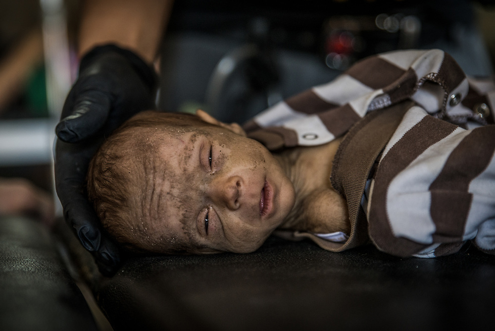 A severely malnourished two-month-old baby receives emergency treatment at a trauma stabilisation point less than a kilometre from the frontline on the edge of Mosul's Old City, Iraq, on June 21, 2017.<br /> <br /> After enduring several months without enough food, water and fuel while trapped in ISIS-held territory in Mosul's Old City, many civilians showed signs of acute malnutrition. <br /> <br /> Volunteer medics from international medical NGOs Global Response Management and Academy of Emergency Medicine, together with Iraqi forces medics, worked around the clock to provide emergency pre-hospital care to sick and injured civilians and soldiers.